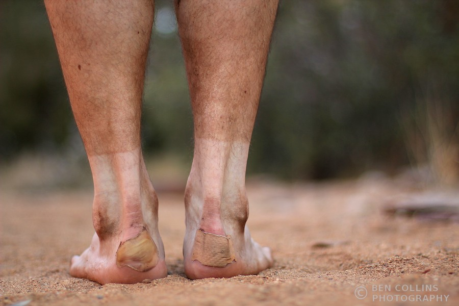 Blister treatment, Larapinta Trail, Australia